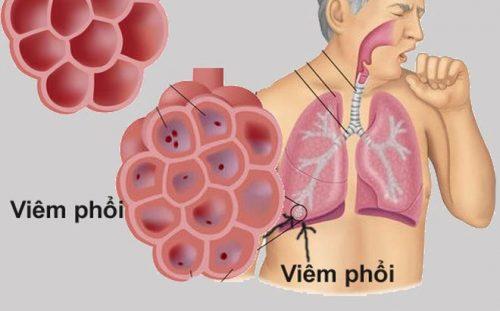 thuốc chữa viêm phổi