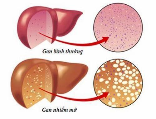 bài thuốc chữa gan nhiễm mỡ