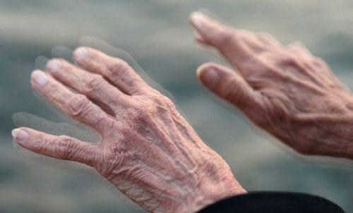 Hành Trình Đẩy Lùi Bệnh Parkinson Của Cô Ánh 70 Tuổi Ở Hồ Chí Minh