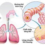 pqa hoàng kim chữa phổi tắc nghẽn mãn tính