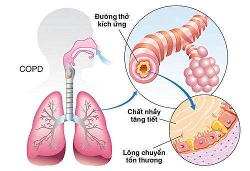 Chữa Bệnh Viêm Phổi Tắc Nghẽn Mãn Tính (COPD) Như Thế Nào? Chữa Ở Đâu?